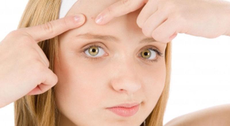 Qué es el acné