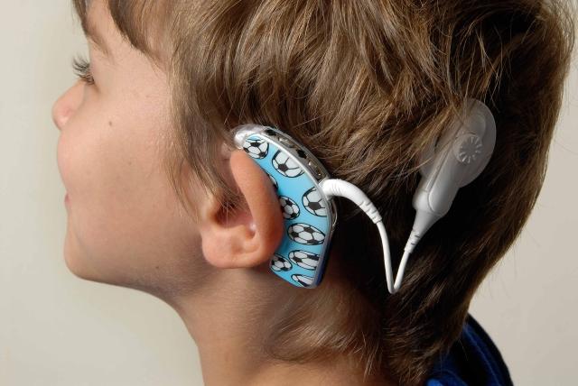 implante-coclear-eduacion-sordo