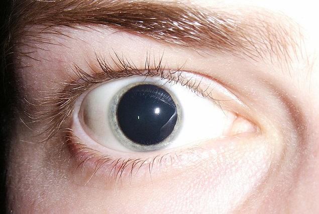 #5 Experimentos con LSD