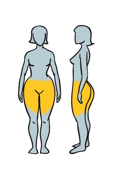 Tipo 3: Obesidad glútea